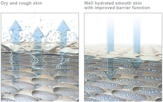 Graphic of dry skin and graphic of hydrated skin