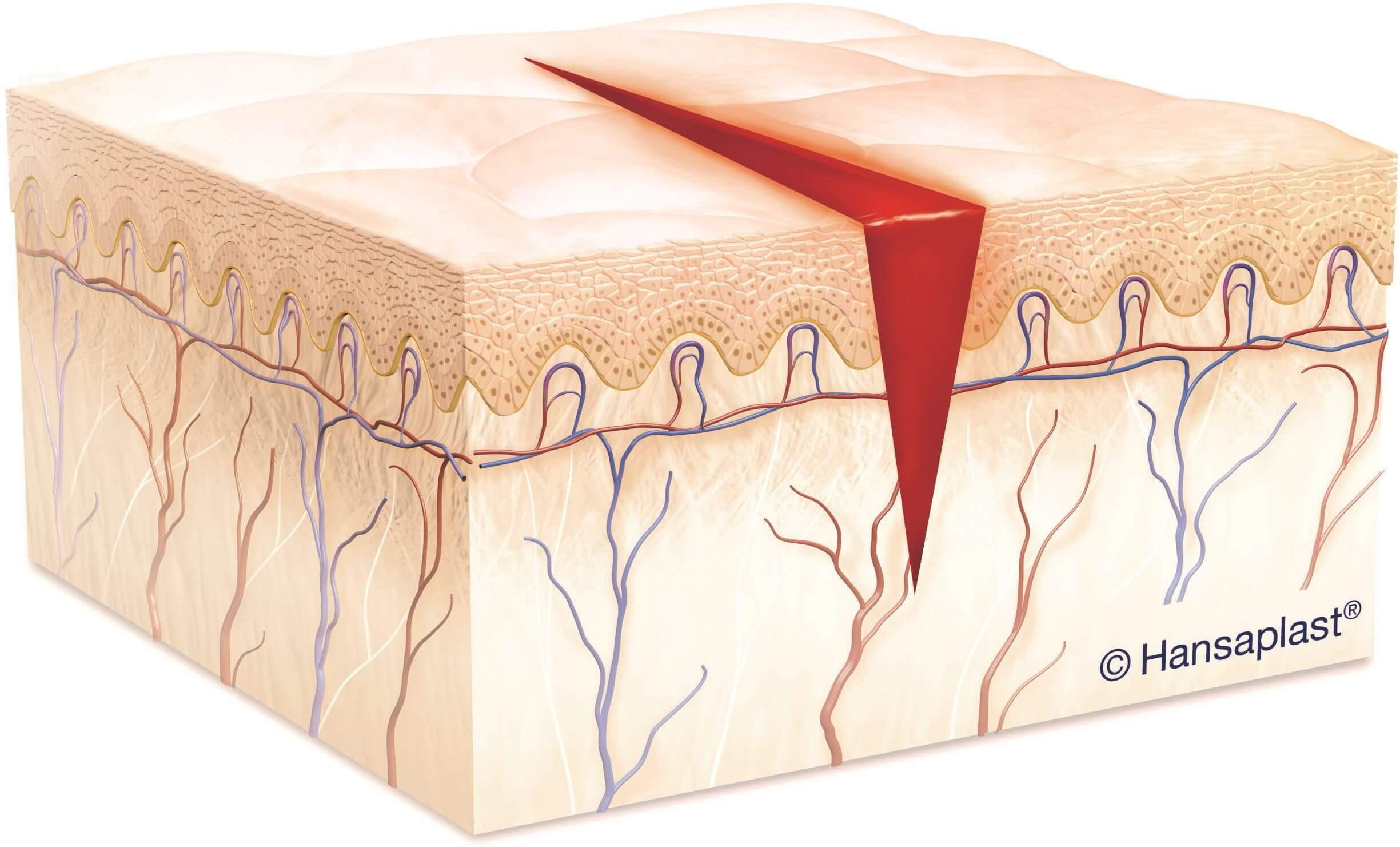 Diagram of a cut showing skin and blood vessels