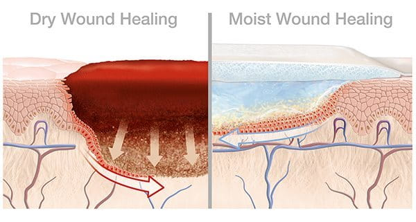 Illustration about comparison of dry and moist wound healing